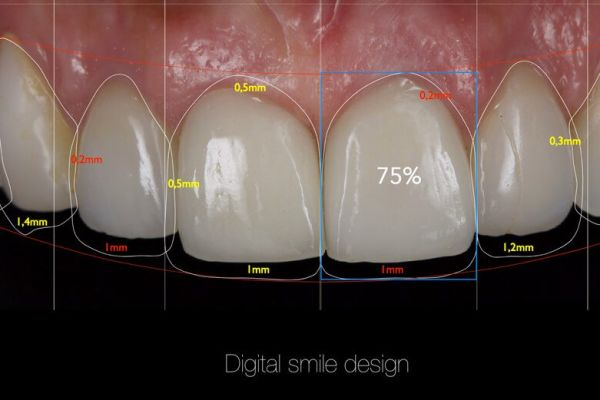 Digital smile academy